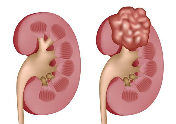Carcinoma là gì? Các xác định Carcinoma