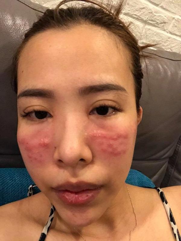 Phốt công ty Hàn Quốc tiêm thuốc dởm cho khách!